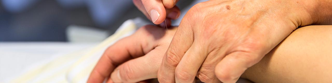 akupunktur skive