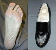 diabetiske fodsår